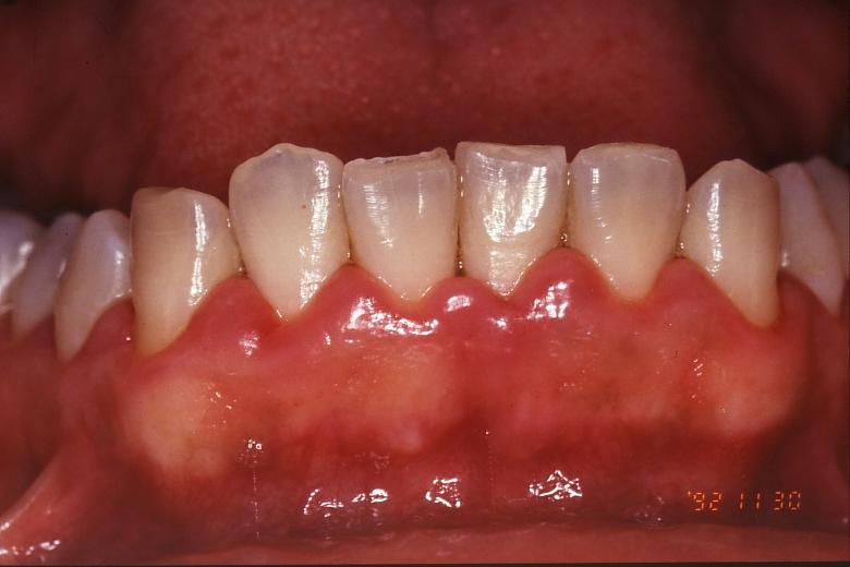 歯茎 腫れ 後 抜歯